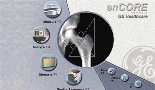 GE Healthcare - enCORE