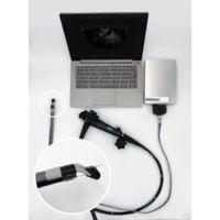 EndoSound  - EndoSound Vision System